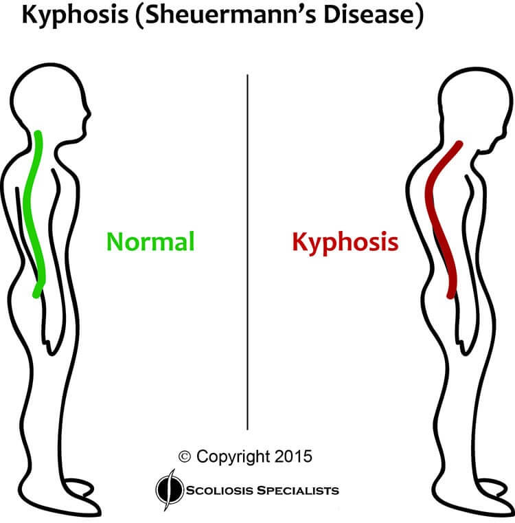 About Kyphosis